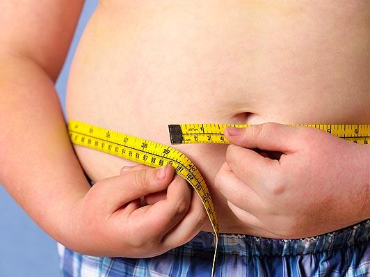 Obesidade-infantil 6
